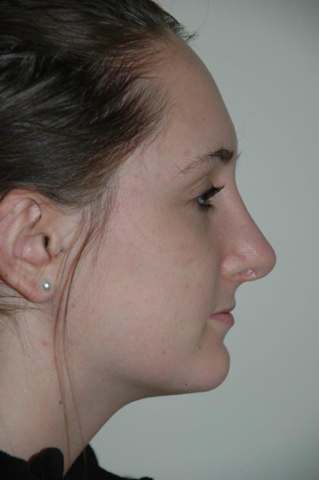 Rhinoplasty Gallery - Patient 53824882 - Image 2