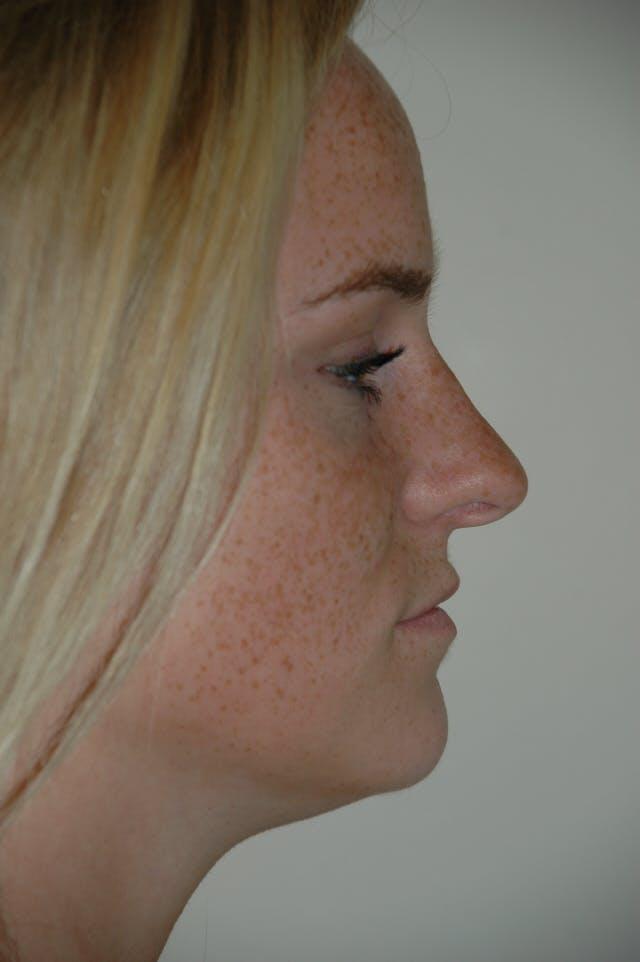 Rhinoplasty Gallery - Patient 53824970 - Image 1
