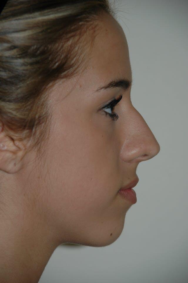 Rhinoplasty Gallery - Patient 53825279 - Image 1