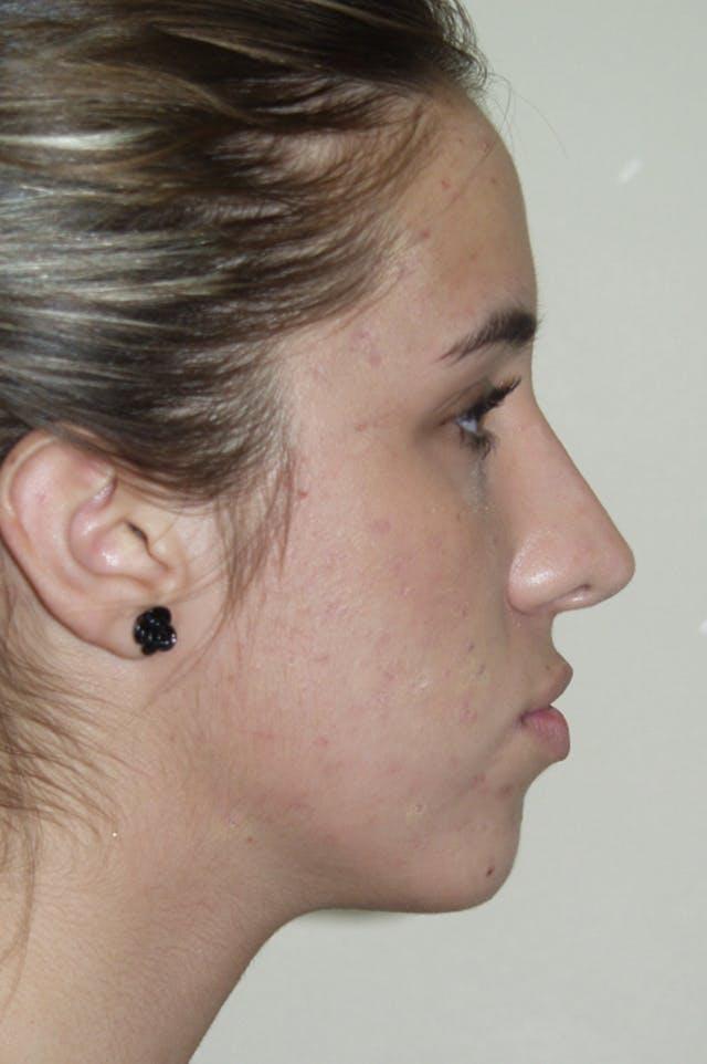 Rhinoplasty Gallery - Patient 53825279 - Image 2
