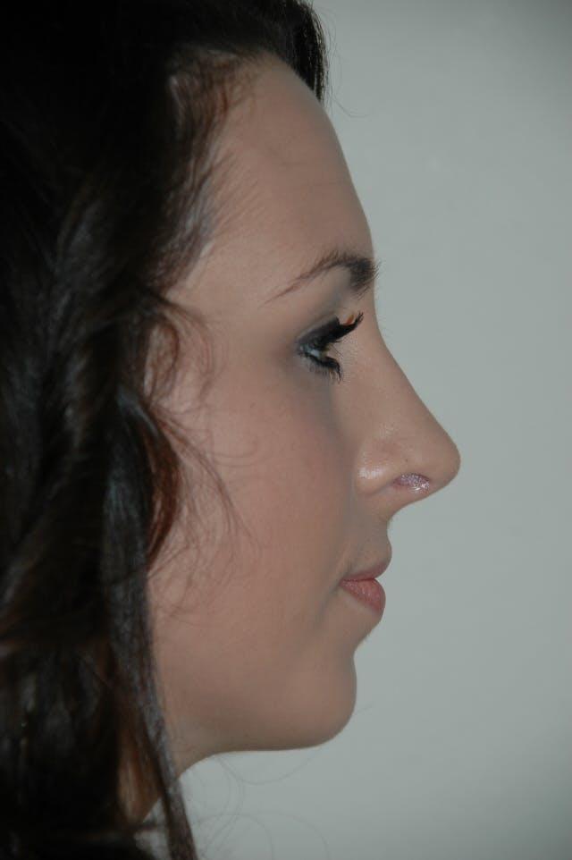 Rhinoplasty Gallery - Patient 53825280 - Image 2