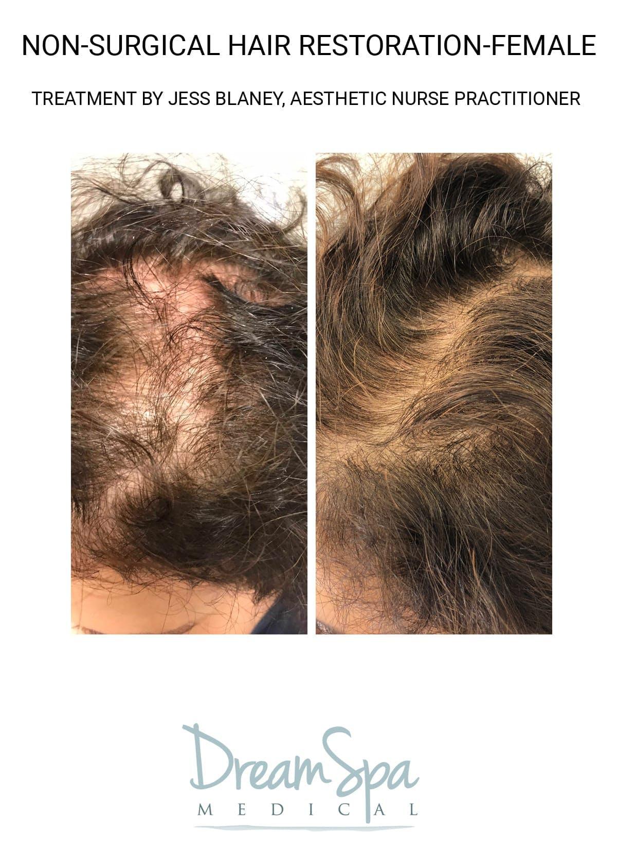 Hair Restoration Gallery - Patient 53237640 - Image 1