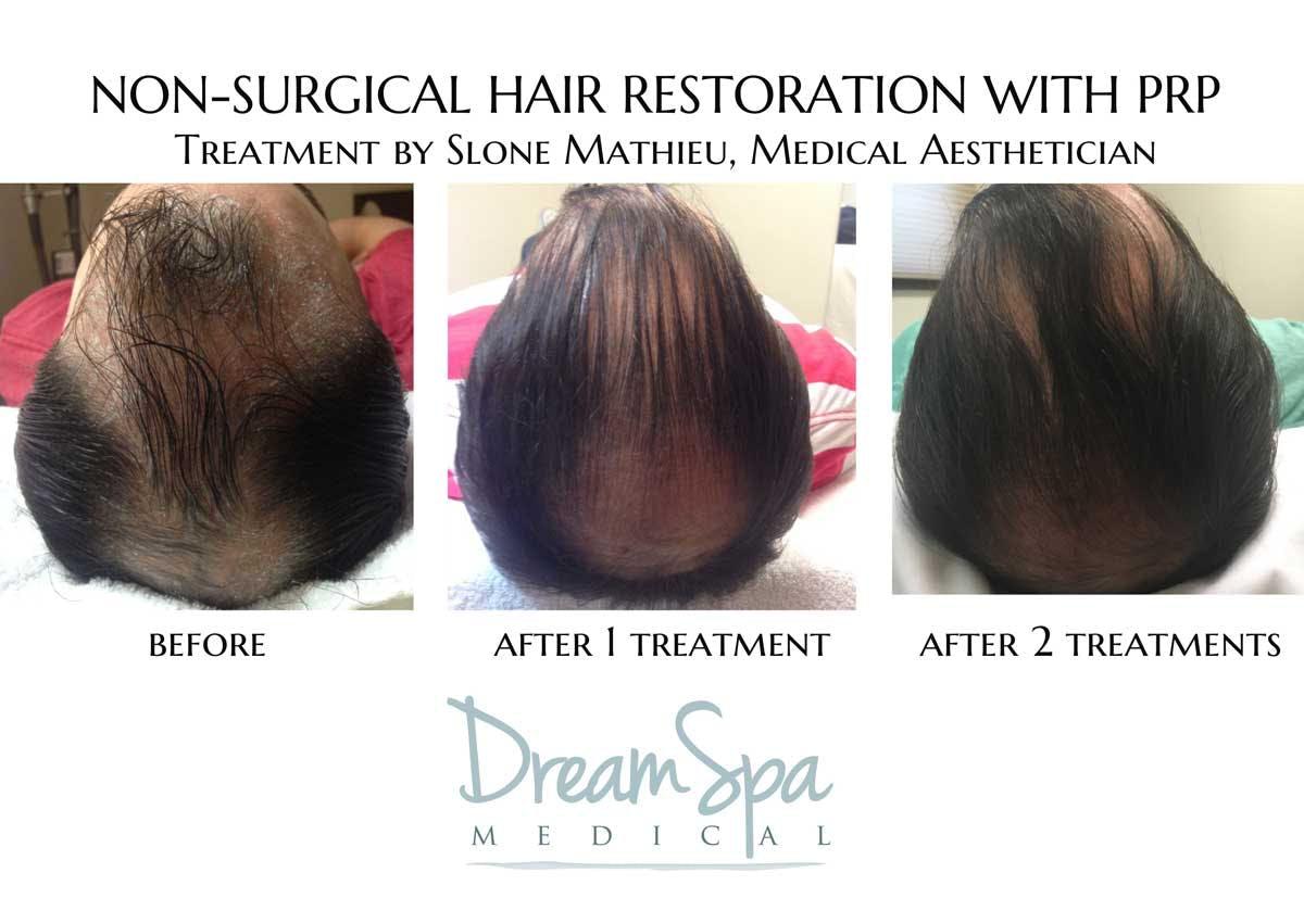 Hair Restoration Gallery - Patient 53237641 - Image 1