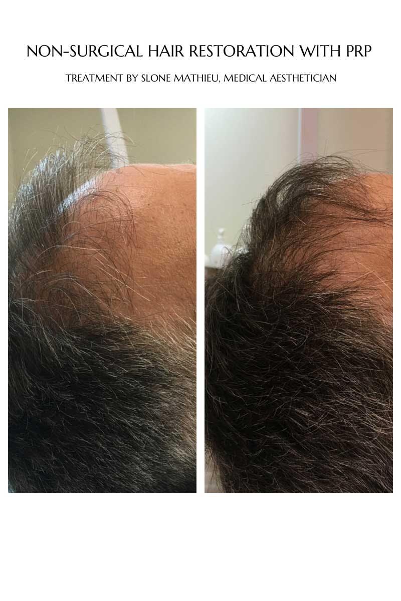 Hair Restoration Gallery - Patient 53237643 - Image 1