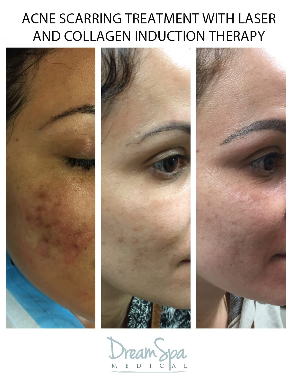 Collagen Induction Gallery - Patient 53237649 - Image 1