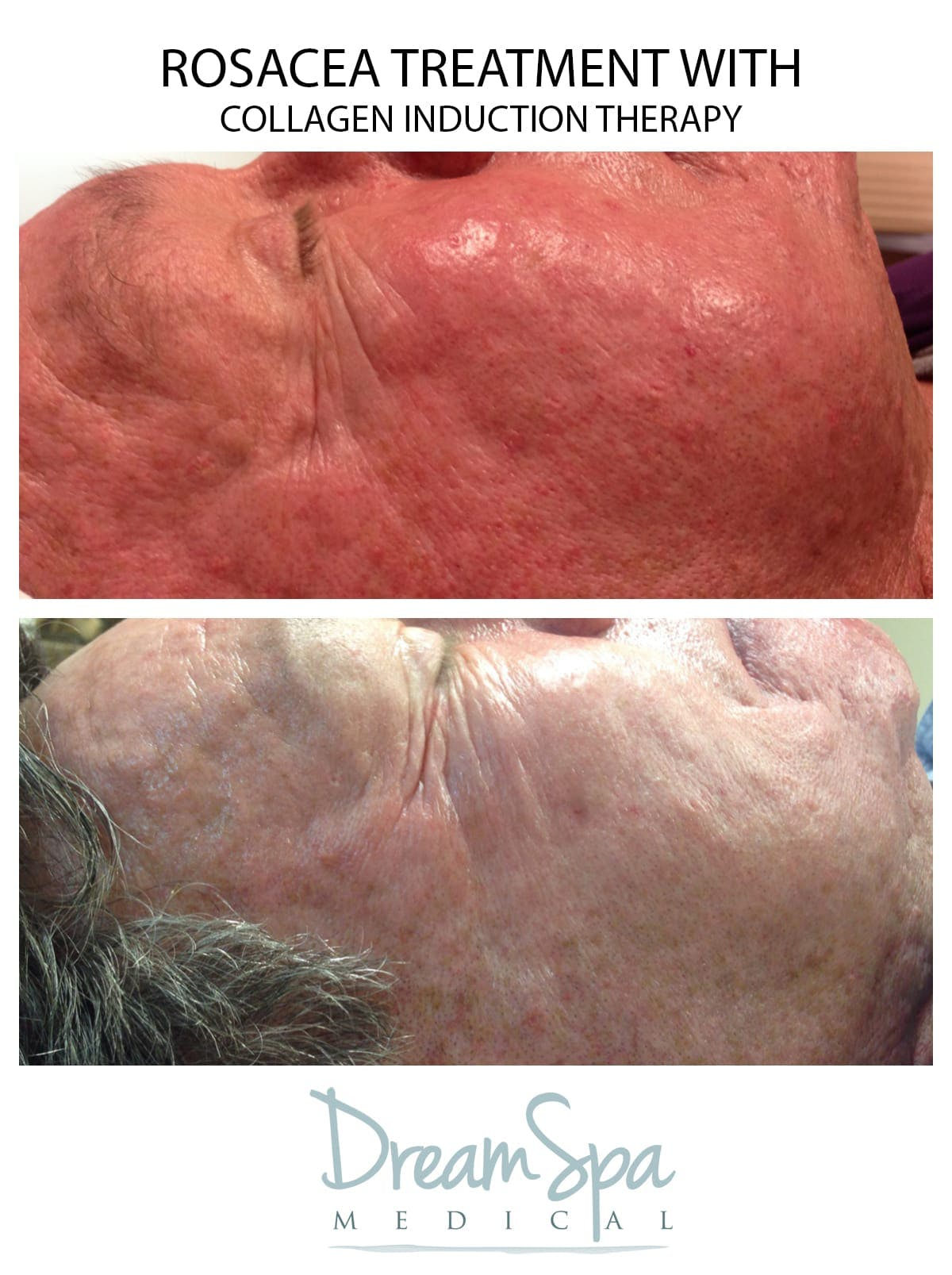 Collagen Induction Gallery - Patient 53237650 - Image 1