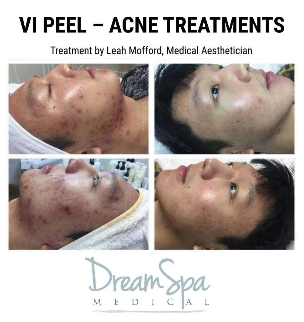 Acne Gallery - Patient 53237708 - Image 1