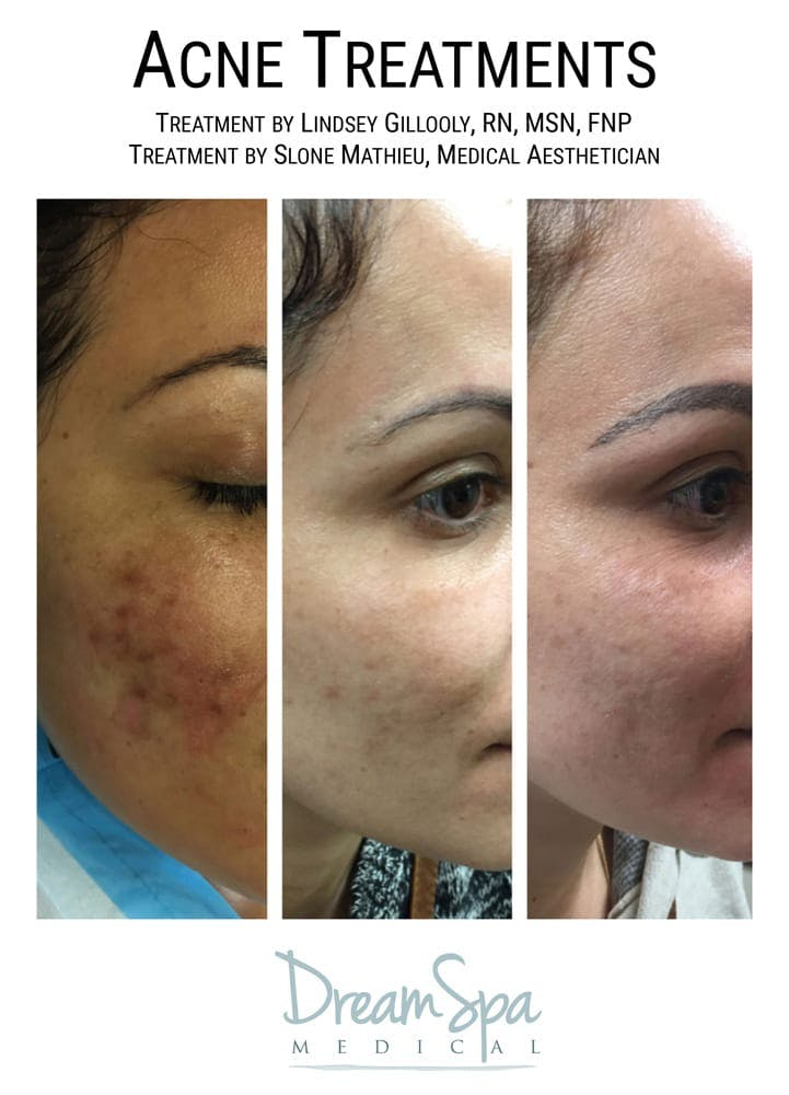 Acne Gallery - Patient 53237711 - Image 1