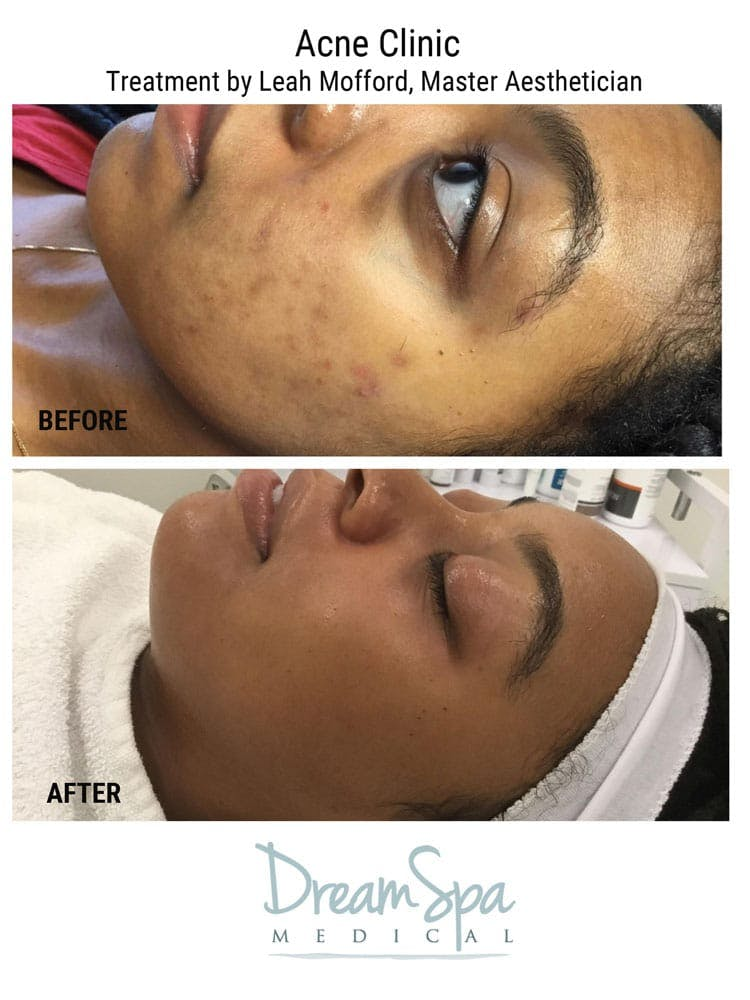 Acne Gallery - Patient 53237712 - Image 1
