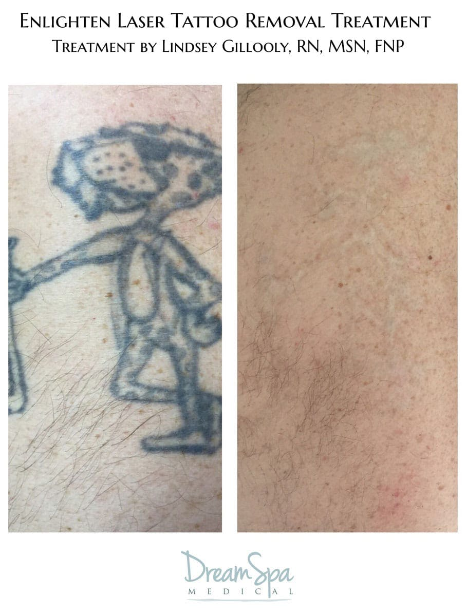 Tattoo Removal Gallery - Patient 53237758 - Image 1
