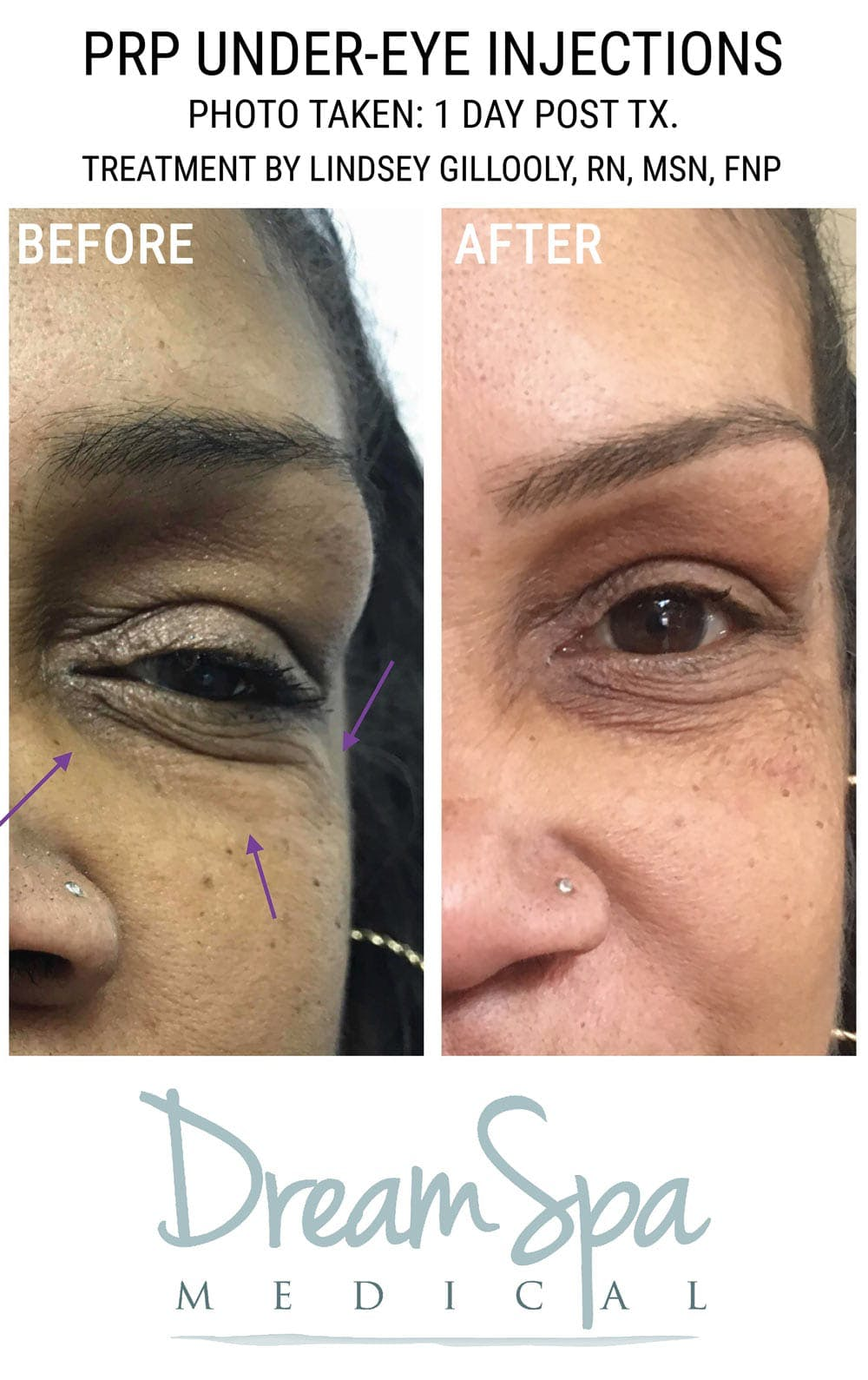 PRP Under Eye Injection Gallery - Patient 53237796 - Image 1