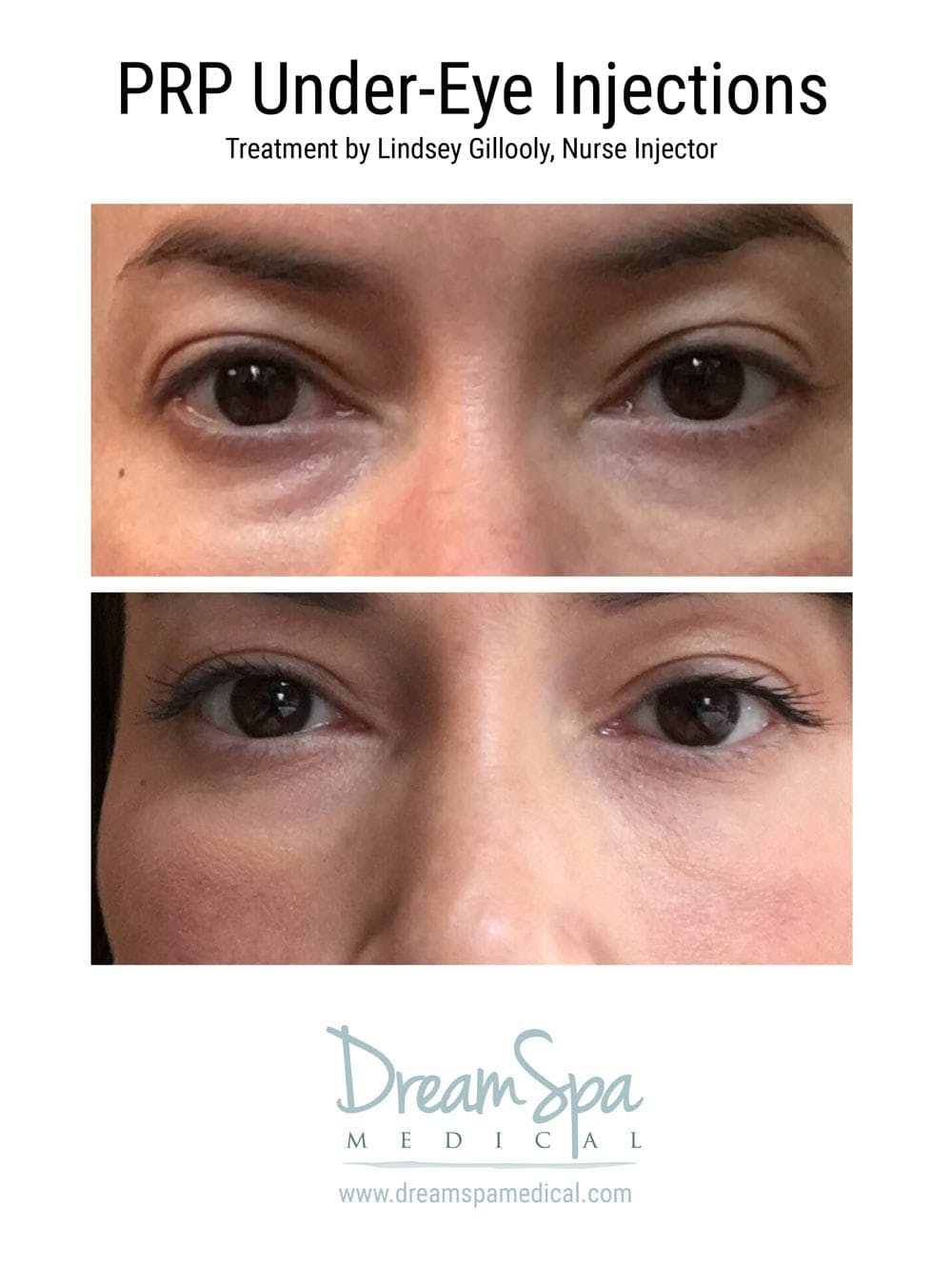 PRP Under Eye Injection Gallery - Patient 53237797 - Image 1