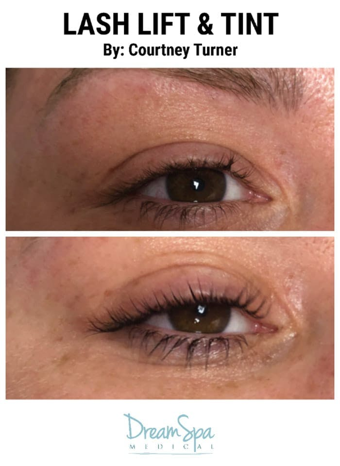 Lashes Gallery - Patient 53238314 - Image 1
