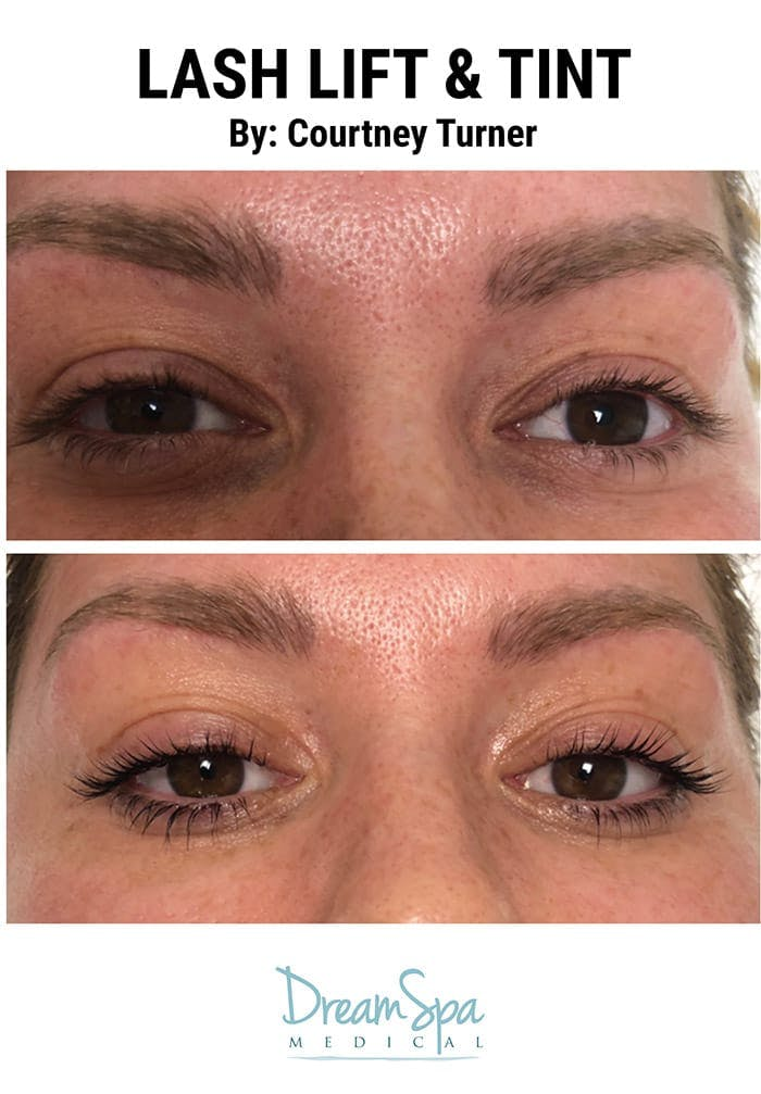 Lashes Gallery - Patient 53238314 - Image 2