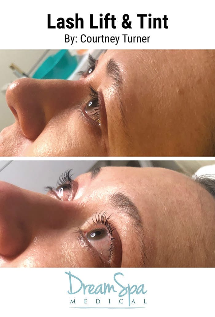 Lashes Gallery - Patient 53238319 - Image 1