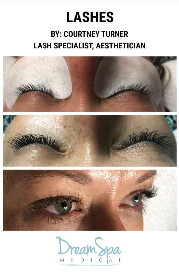 Lashes Gallery - Patient 53238321 - Image 1