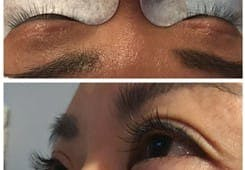 Lashes Gallery - Patient 53238323 - Image 1