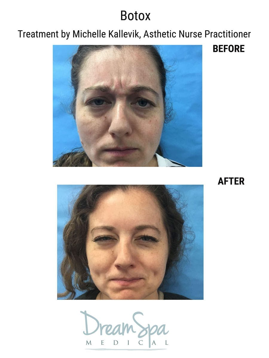 Injectables Gallery - Patient 53238942 - Image 2