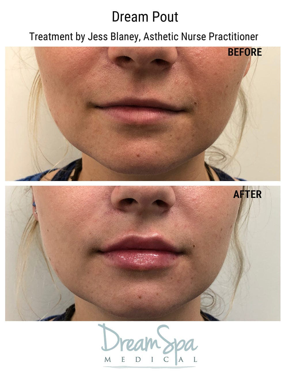 Injectables Gallery - Patient 53238945 - Image 3