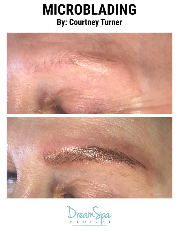 Microblading Gallery - Patient 53240015 - Image 1