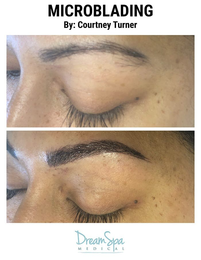 Microblading Gallery - Patient 53240016 - Image 1
