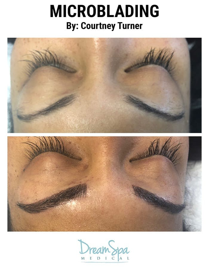 Microblading Gallery - Patient 53240017 - Image 1