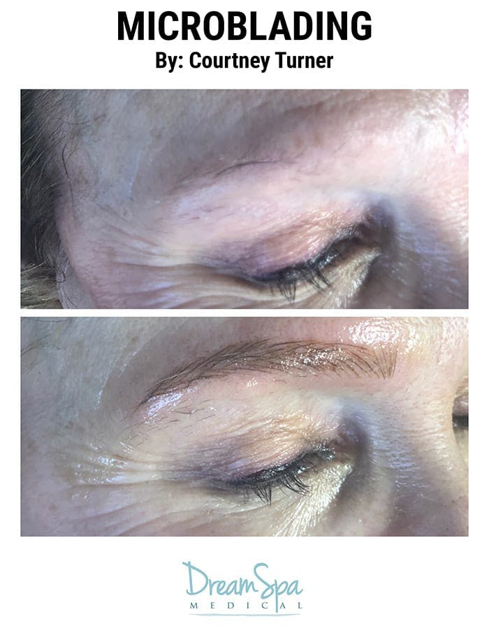 Microblading Gallery - Patient 53240018 - Image 1