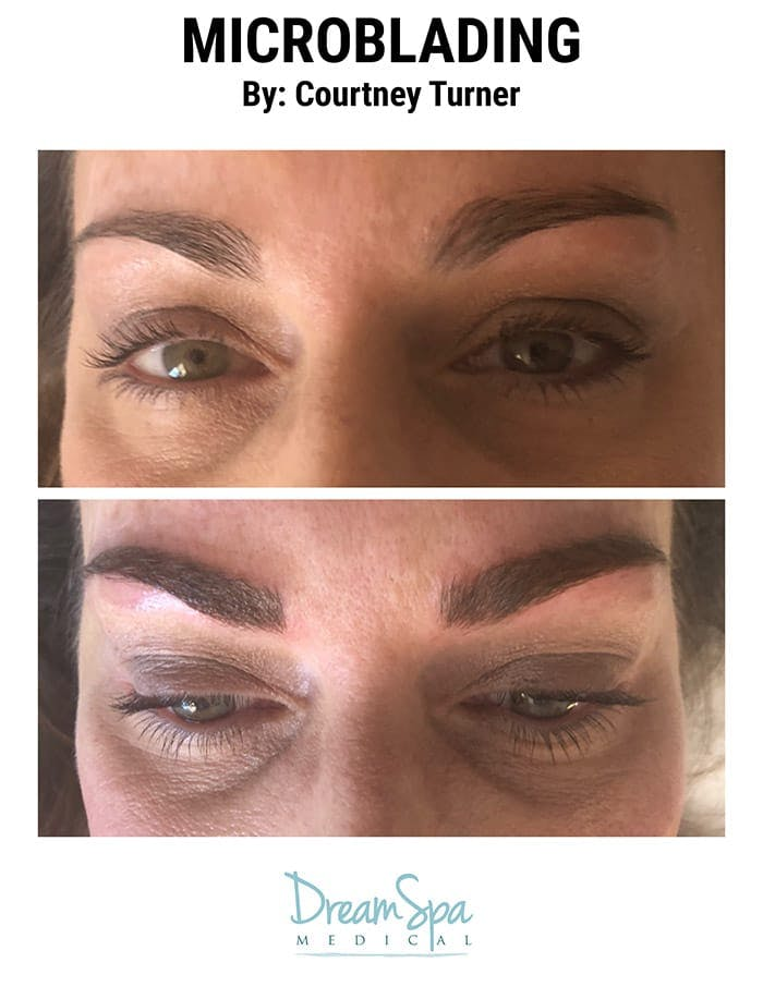 Microblading Gallery - Patient 53240019 - Image 1
