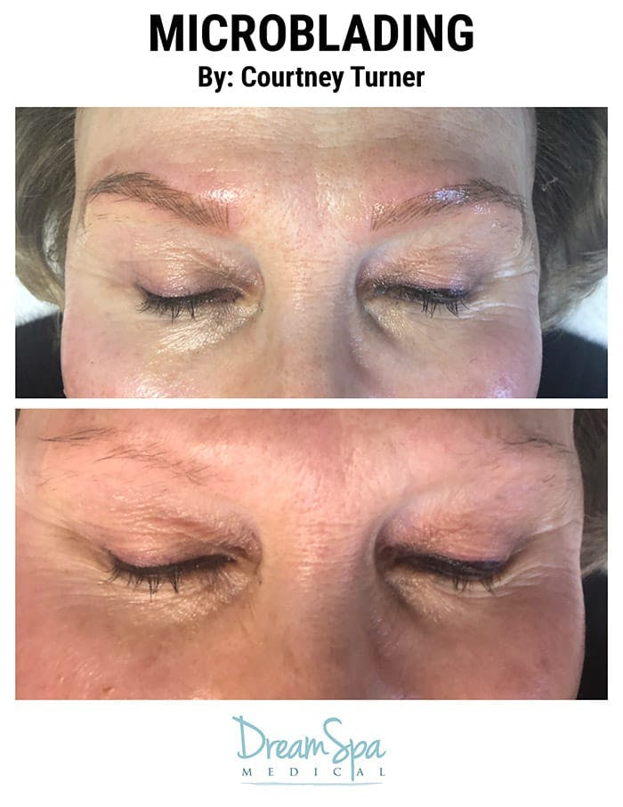 Microblading Gallery - Patient 53240020 - Image 1