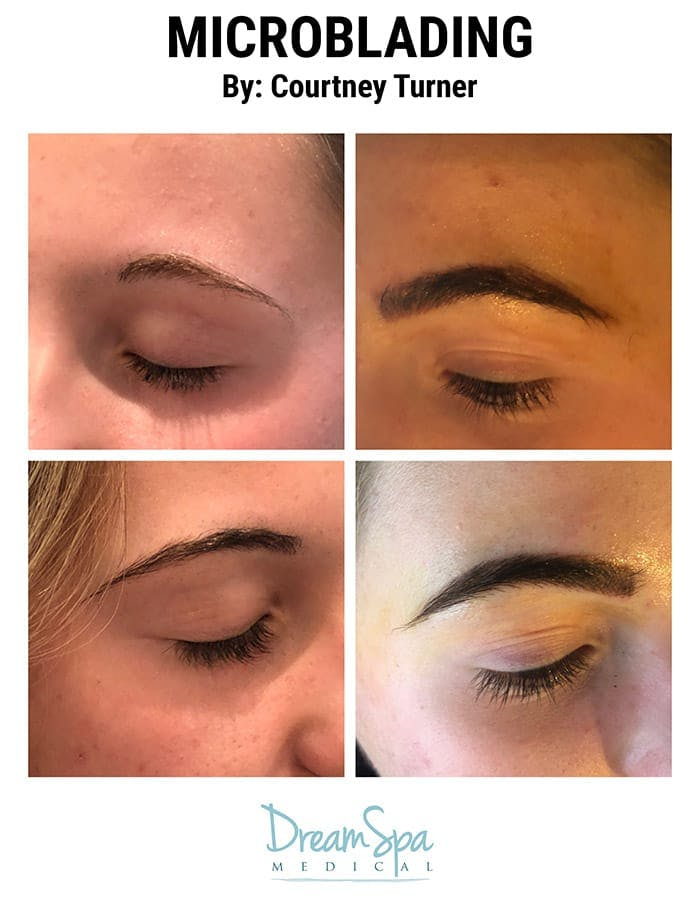 Microblading Gallery - Patient 53240021 - Image 1