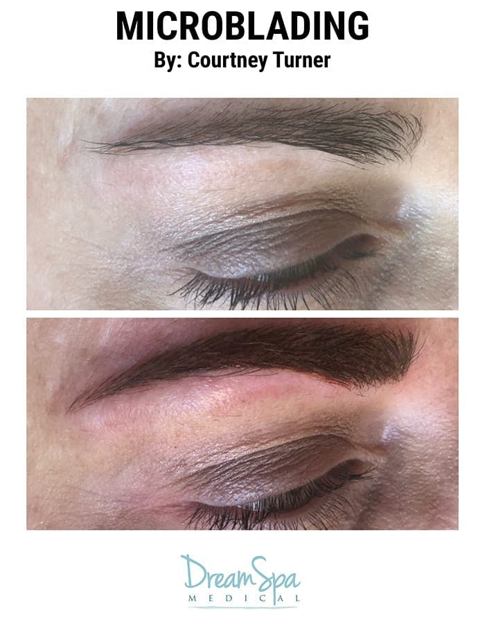 Microblading Gallery - Patient 53240023 - Image 1