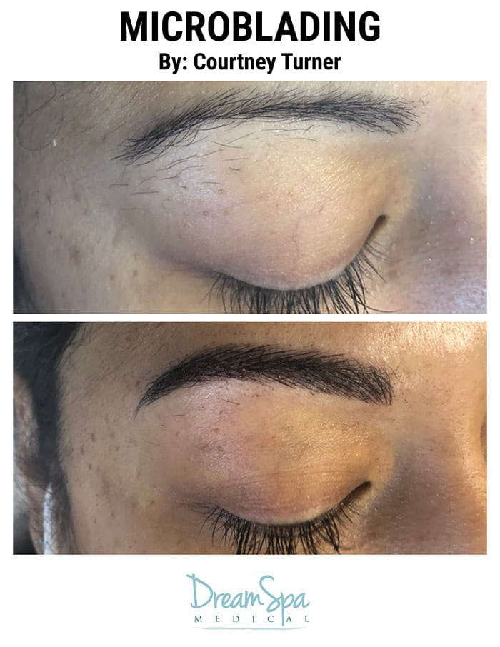 Microblading Gallery - Patient 53240024 - Image 1