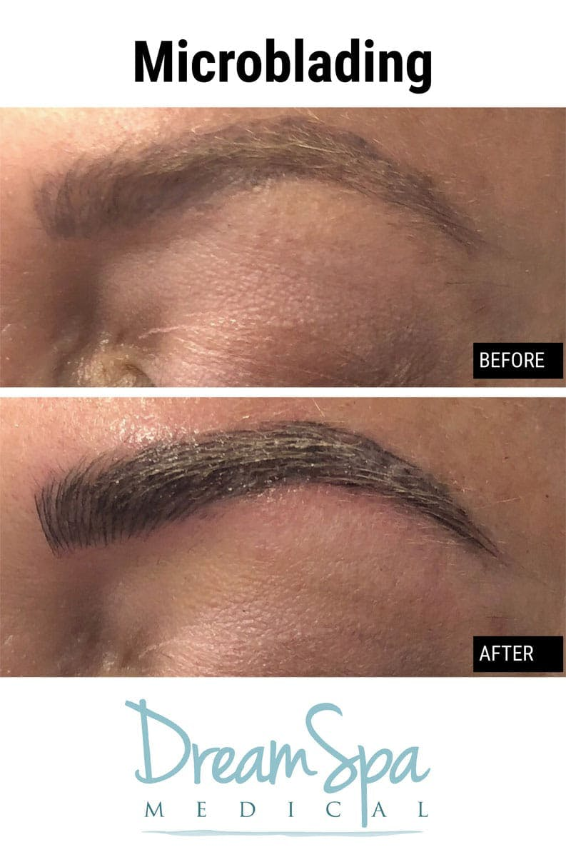 Microblading Gallery - Patient 53240025 - Image 1