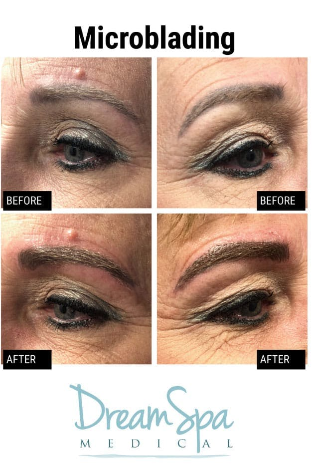Microblading Gallery - Patient 53240026 - Image 1