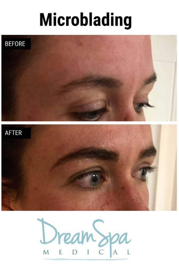 Microblading Gallery - Patient 53240027 - Image 1