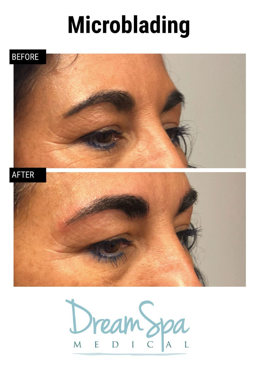 Microblading Gallery - Patient 53240028 - Image 1