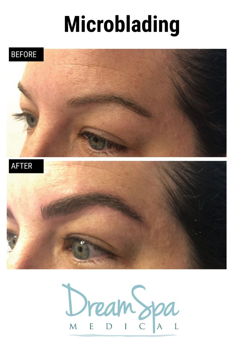 Microblading Gallery - Patient 53240029 - Image 1