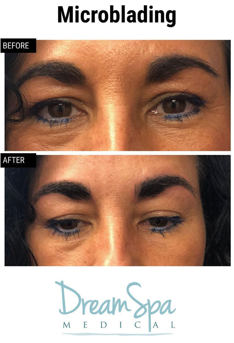 Microblading Gallery - Patient 53240028 - Image 2