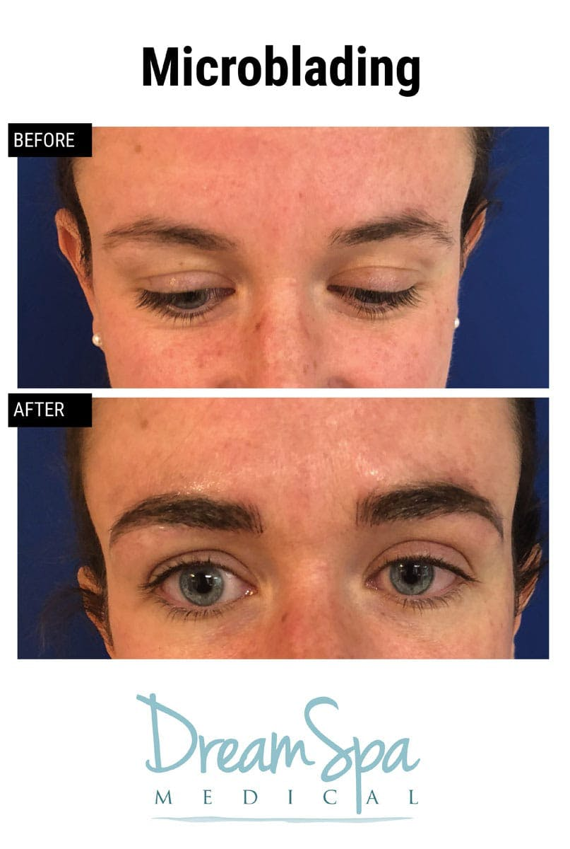 Microblading Gallery - Patient 53240027 - Image 2