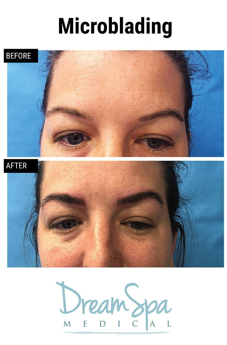 Microblading Gallery - Patient 53240029 - Image 2