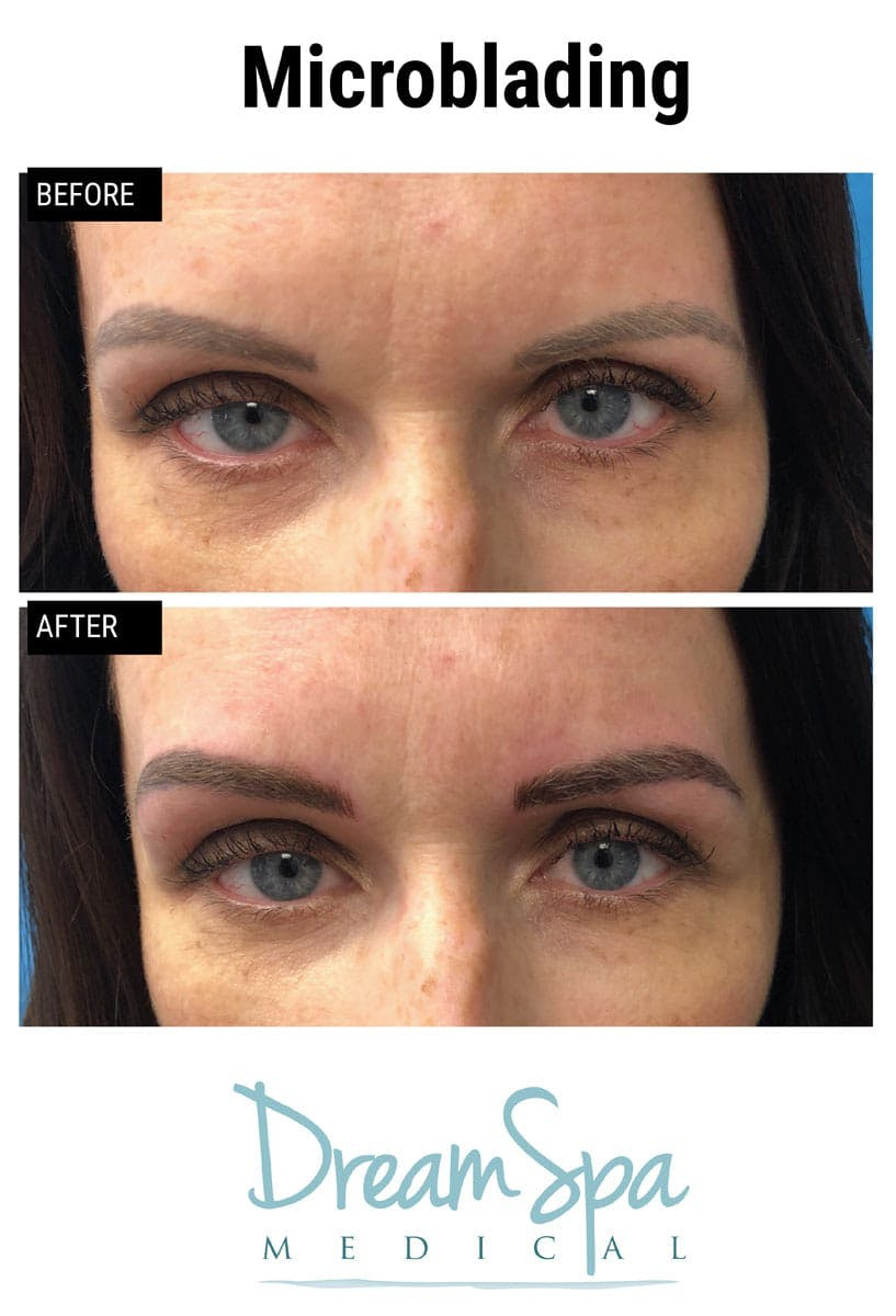 Microblading Gallery - Patient 53240030 - Image 1