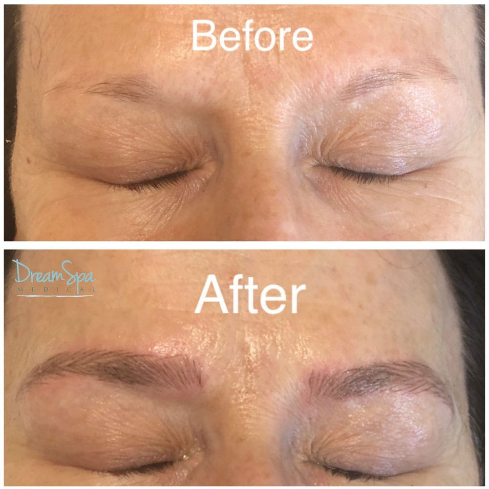 Microblading Gallery - Patient 53240031 - Image 1