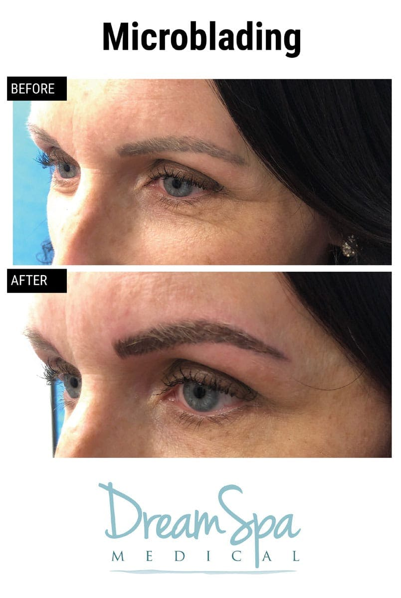 Microblading Gallery - Patient 53240030 - Image 2