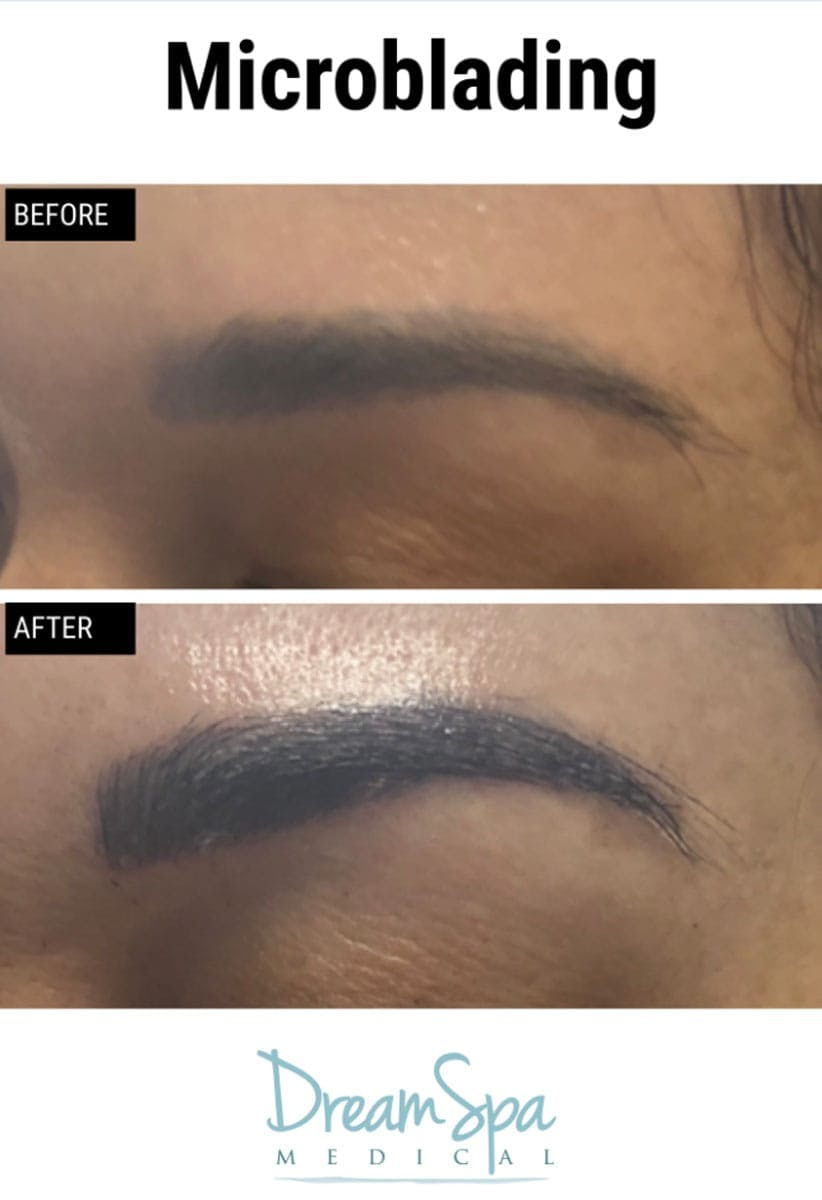 Microblading Gallery - Patient 53240032 - Image 1