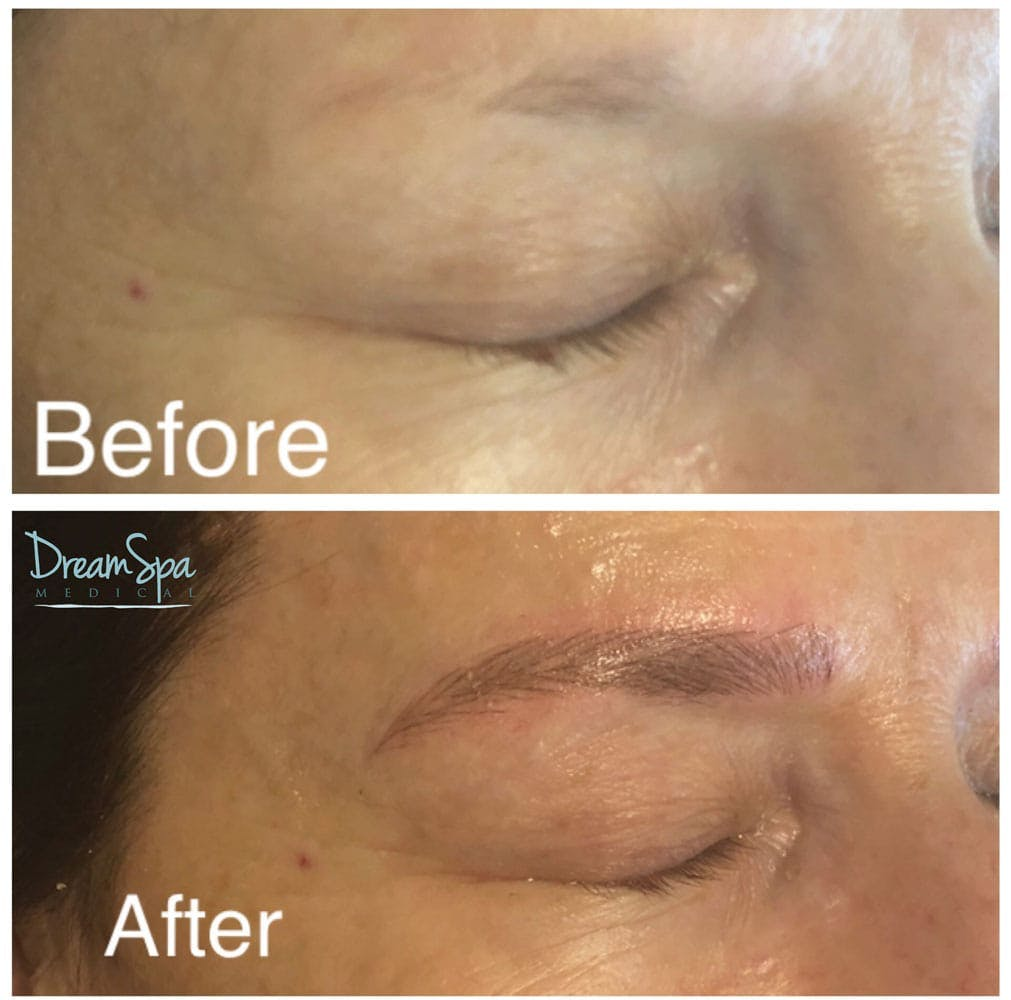 Microblading Gallery - Patient 53240031 - Image 2