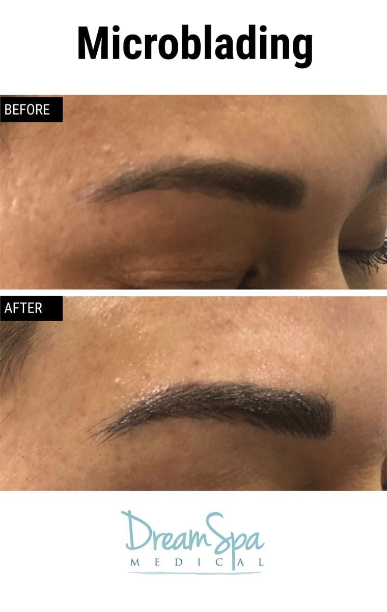 Microblading Gallery - Patient 53240032 - Image 2