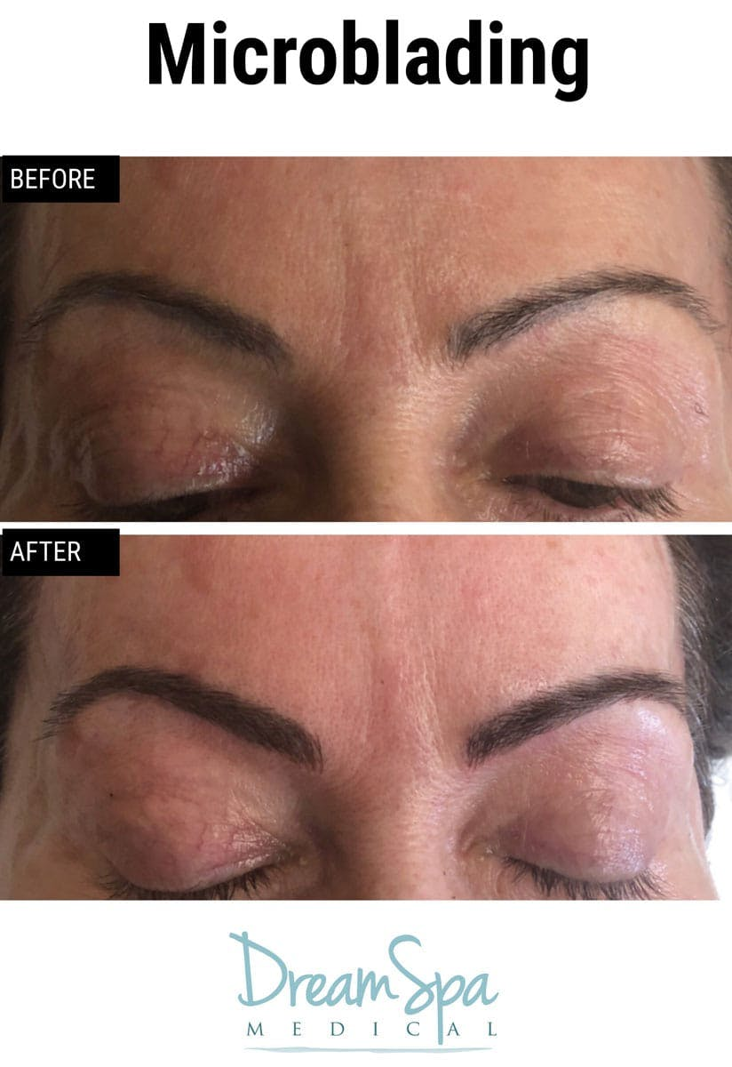 Microblading Gallery - Patient 53240033 - Image 1