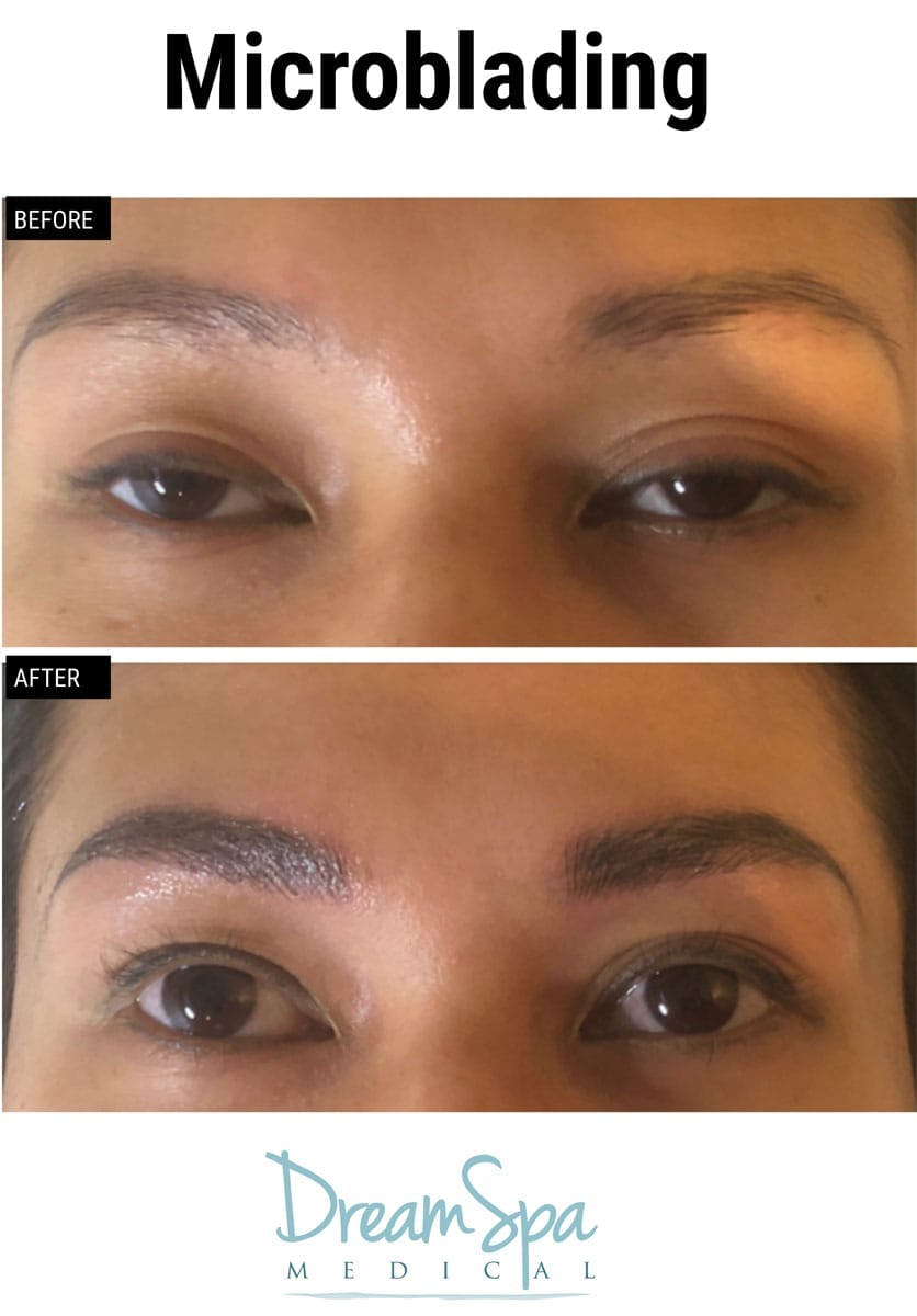 Microblading Gallery - Patient 53240034 - Image 1