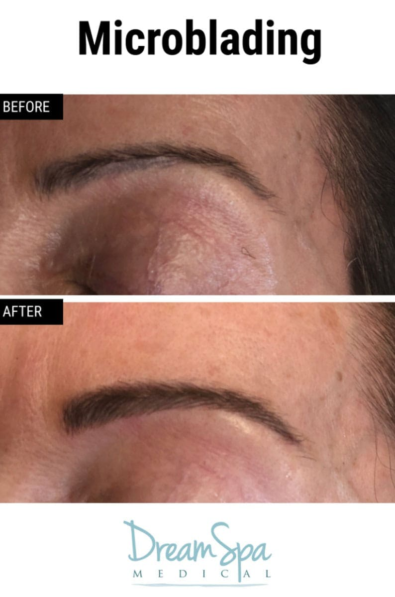 Microblading Gallery - Patient 53240033 - Image 2
