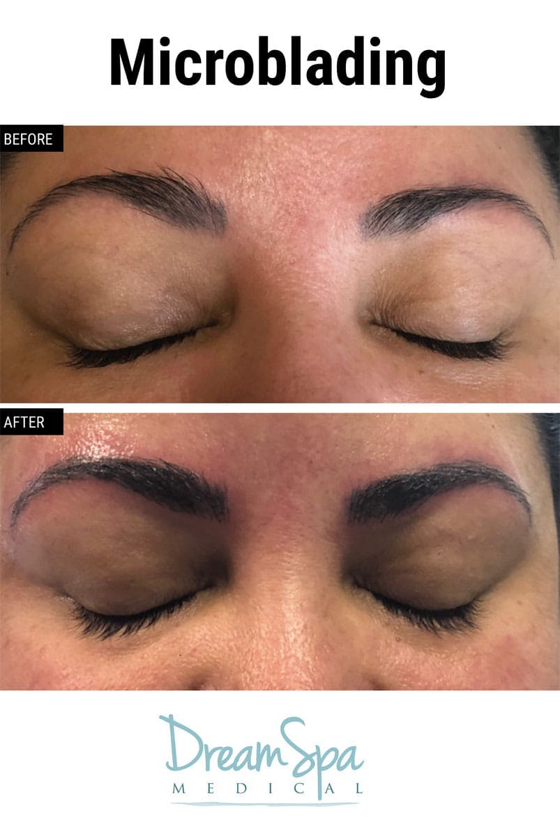 Microblading Gallery - Patient 53240035 - Image 1